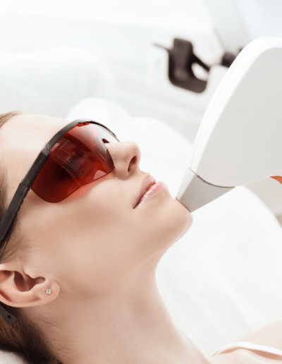 Womens Chin Laser Hair Removal