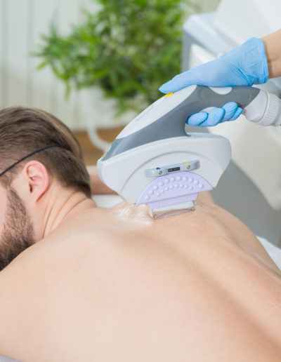 Mens Back Laser Hair Removal Treatment